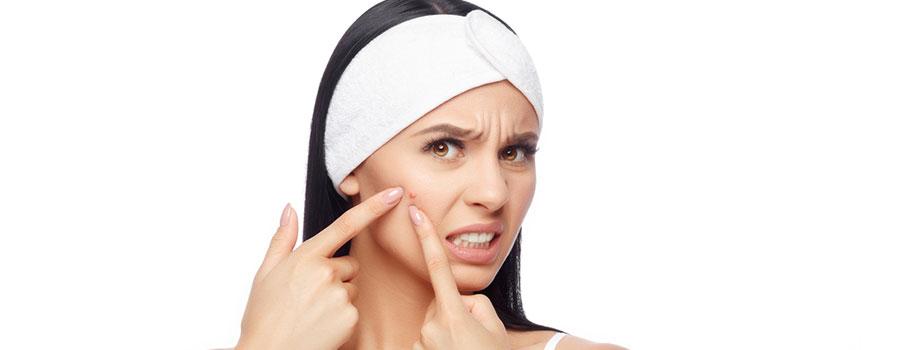 camila acne